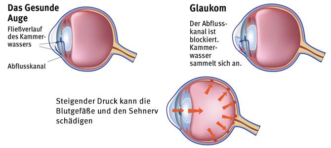 Entstehung eines Glaukoms