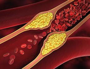 NattoPlasmin Plus - Blutplättchen